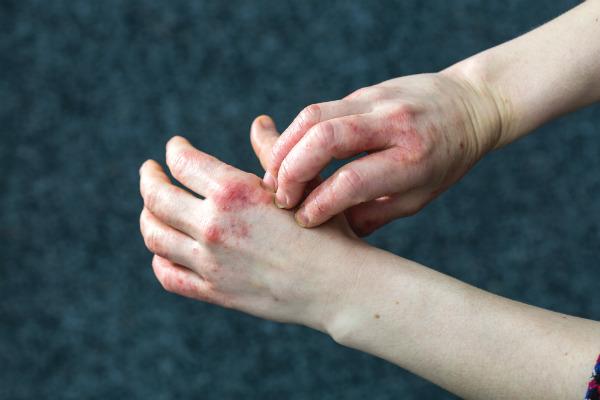 1800 Dyshidrotic Eczema rs