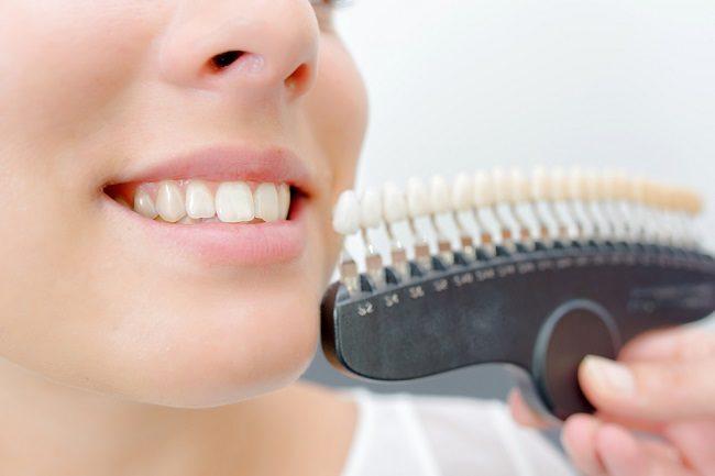 Penyebab Munculnya Noda pada Gigi dan Cara Mengatasinya