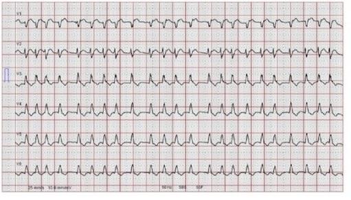 Gambar 1. Gambaran EKG atrial fibrilasi. Sumber : Openi, 2014