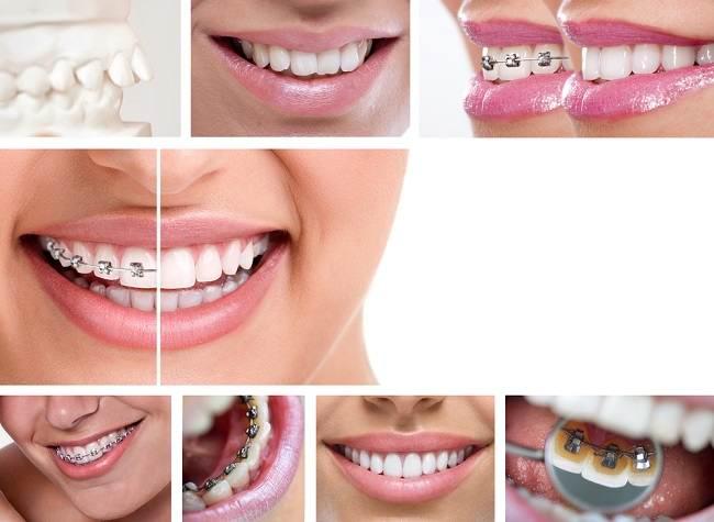 Kenali Jenis-Jenis Kawat Gigi