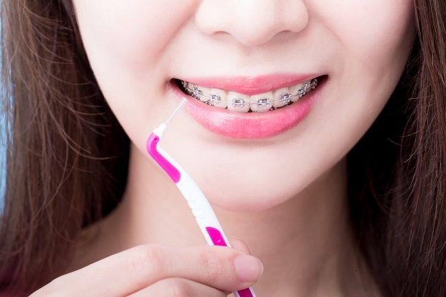 Cara Merawat Gigi untuk Pemakai Behel
