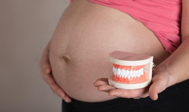 Tips Melakukan Perawatan Gigi saat Hamil - Alodokter