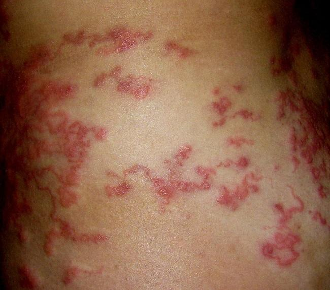 cutaneous larva migrans, Weis Sagung, 2009