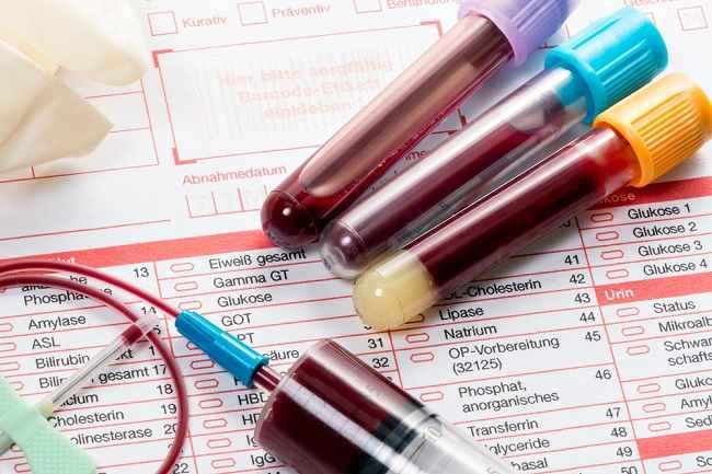 Pemeriksaan HbA1c untuk Mendeteksi dan Mengontrol Diabetes