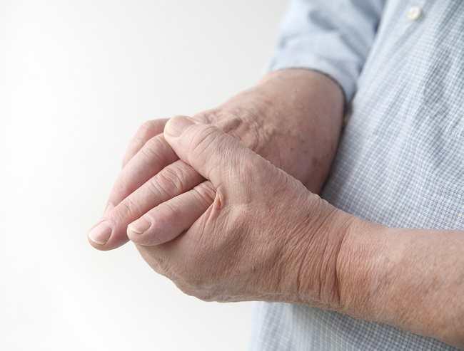 Ketahui Penyebab Trigger Finger dan Cara Mengobatinya
