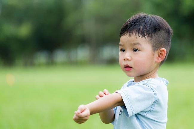 Bunda, Ini Cara Mengatasi Gigitan Serangga pada Anak