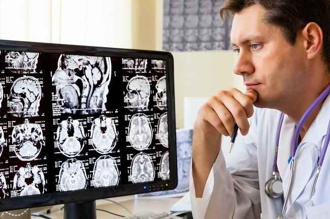 Mengulas Peran Dokter Bedah Saraf dan Tindakan yang Dilakukan
