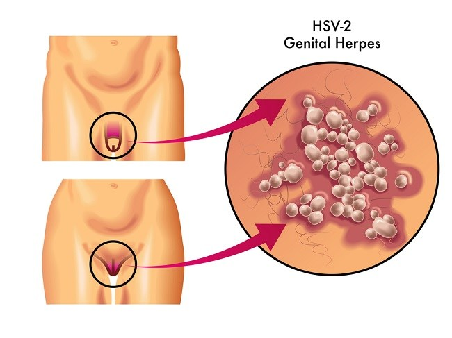 Hpv herpes genitalis - Human papillomavirus and herpes