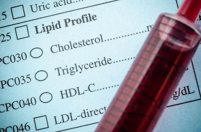 Cek Kolesterol: Manfaat dan Prosedur Pelaksanaan yang Perlu Anda Ketahui