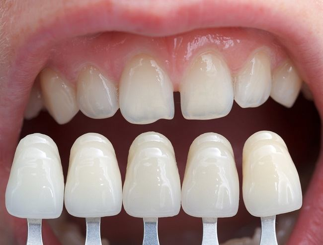 Miliki Senyum Cantik Alami dengan Veneer Gigi