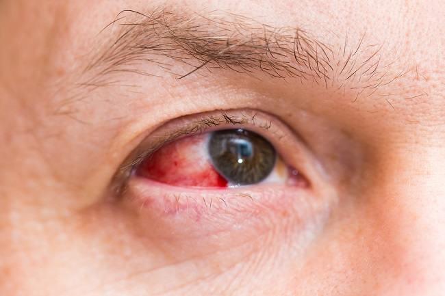 Bercak Merah pada Mata Akibat Perdarahan Subkonjungtiva, Ini Penyebab dan Obatnya - Alodokter