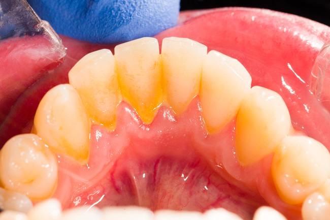 Bisakah Karang Gigi Dibersihkan Sendiri di Rumah? - Alodokter