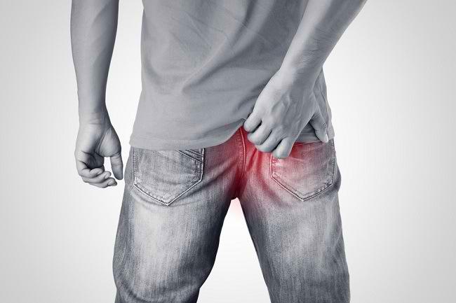 Anus Gatal Dapat Diatasi Melalui Perawatan di Rumah - Alodokter