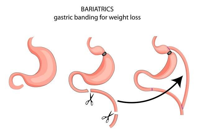 Operasi Bariatrik: Jenis, Manfaat, dan Risiko - Alodokter