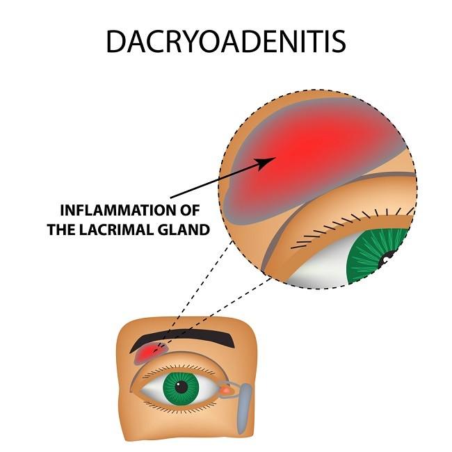 Depositphotos_163731482_s-2019 Dakrioadenitis Compressed