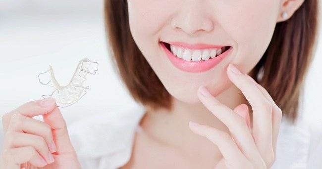 Jenis Retainer Gigi dan Cara Membersihkannya - Alodokter
