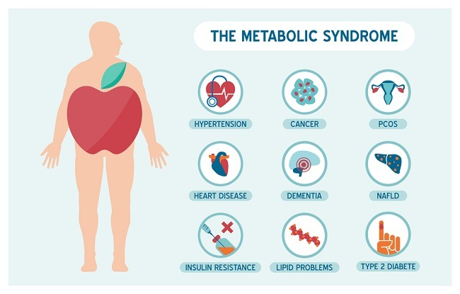 Sindrom Metabolik - patofisiologi, diagnosis, penatalaksanaan - Alomedika