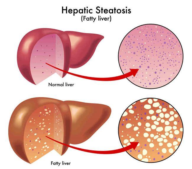 fatty liver compressed