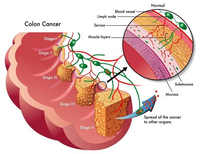 Prognosis Kanker Kolorektal Alomedika