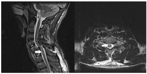 Gambaran MRI cedera spinal traumatik. Sumber: Openi, 2017.