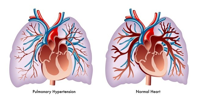 hiper pulmonal comp
