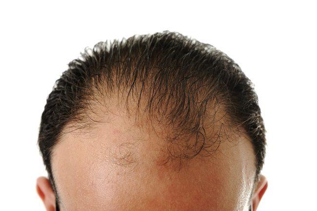 Mengenal Berbagai Prosedur Medis Penumbuh Rambut - Alodokter