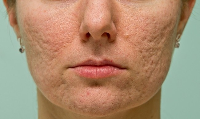 Atrophic Acne Scar comp