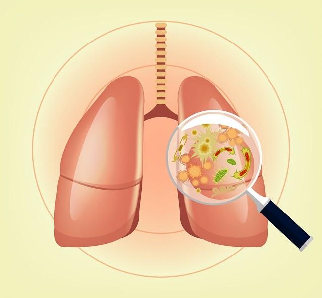 pneumoniacomp