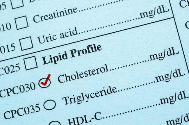 Inilah Jenis Suplemen yang Baik untuk Menurunkan Kolesterol - Alodokter