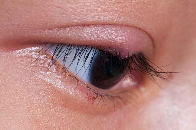 Bintitan di Kelopak Mata, Cari Tahu Pengobatannya di Sini - Alodokter