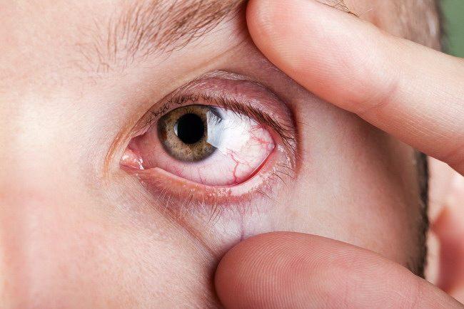 Hasil gambar untuk iritasi mata