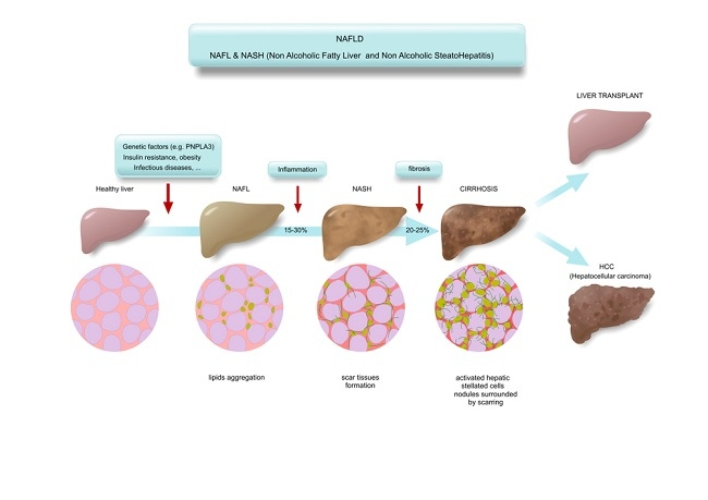 NAFLD NASH comp