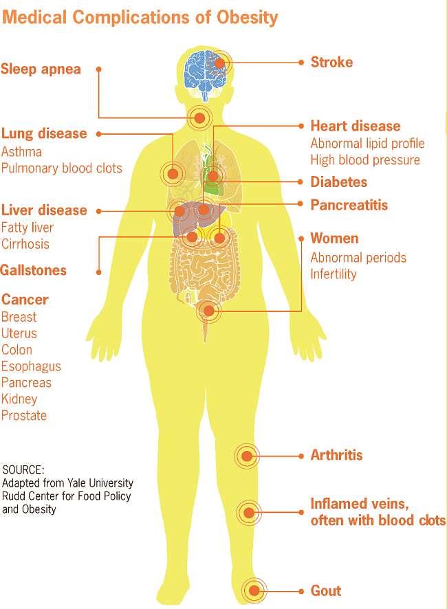 Gambar 2. Komplikasi medis terkait obesitas. Sumber: Wikimedia Commons, 2012.