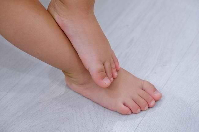 Benarkah Telapak Kaki Rata Bisa Menyebabkan Anak Terlambat Berjalan? - Alodokter