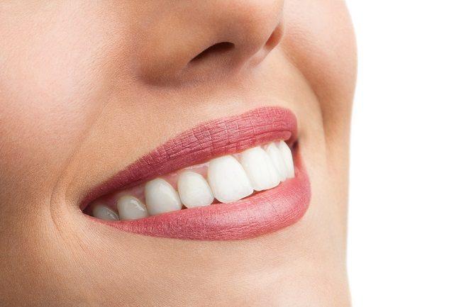 5 Hal yang Harus Diperhatikan Sebelum Bleaching Gigi - Alodokter