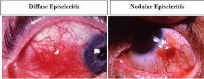 Gambar 1. Episkleritis difusa (kiri) dan Episkleritis nodular (kanan)