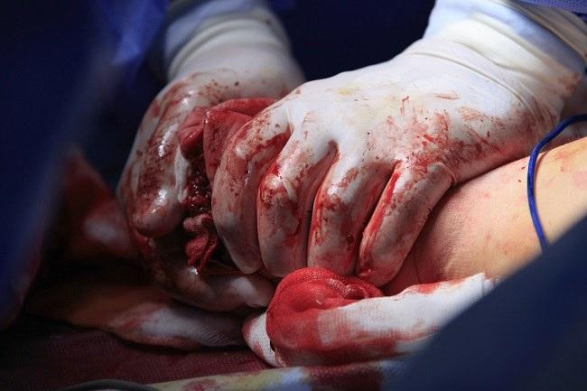 hemoragikcomp