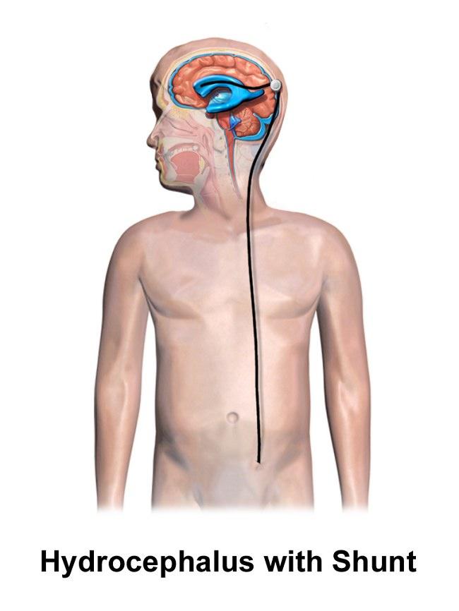 Gambar 5. Sistem shunting ventrikel. A. Ventriculoperitoneal shunt B. Ventriculoatrial shunt. Sumber: Bruce Blaus, Wikimedia commons, 2017