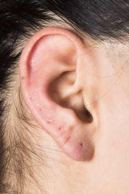 Memahami Sinus Preauricular, Lubang Kecil yang Terbentuk di Telinga - Alodokter