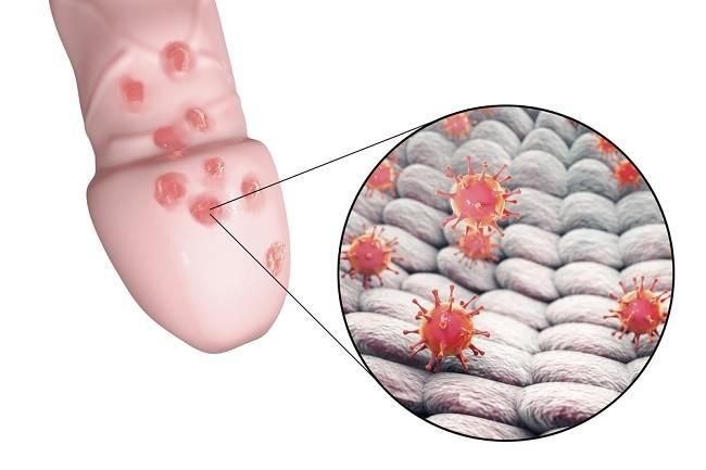 Herpes Genital comp
