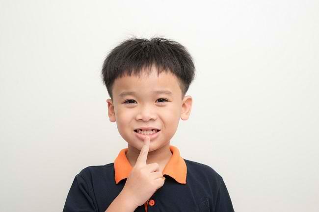 Bunda, Ini Penyebab dan Cara Mengatasi Gigi Renggang pada Anak - Alodokter