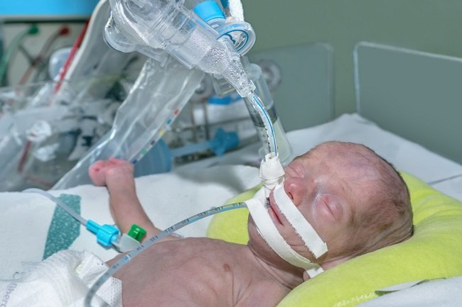 breathing support on baby comp