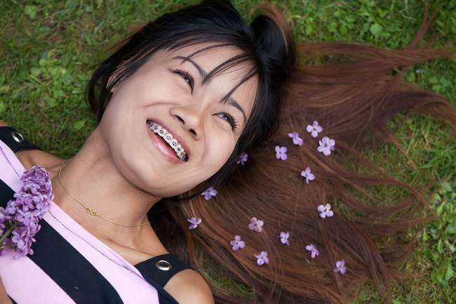 Pemasangan Kawat Gigi, Ini yang Harus Anda Ketahui - Alodokter