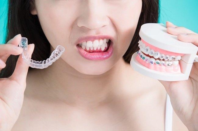 Gigi Tidak Rata Bukan Hanya Mengganggu Percaya Diri - Alodokter