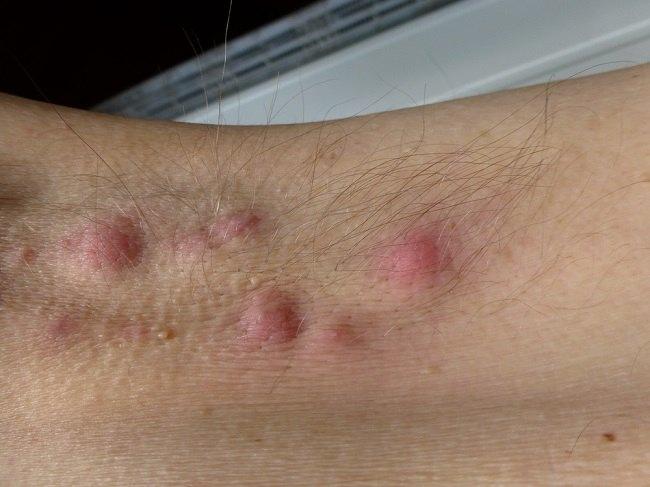 Hidradenitis suppurativa comp