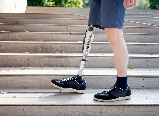 Kenali Penyebab dan Cara Mengatasi Phantom Limb Syndrome - Alodokter