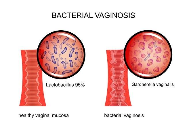 vaginosis bact comp