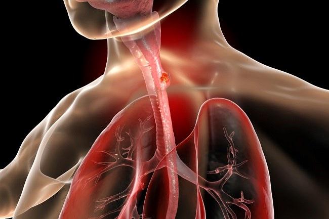 kanker esofagus comp