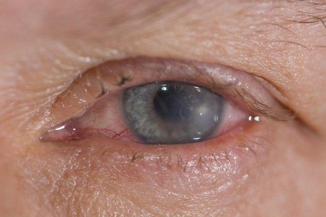 xerophthalmia