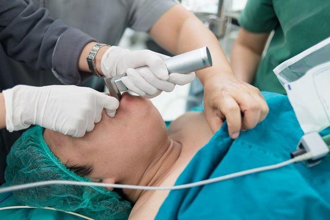 Laringoskopi Prosedur Pemeriksaan Tenggorokan - Alodokter